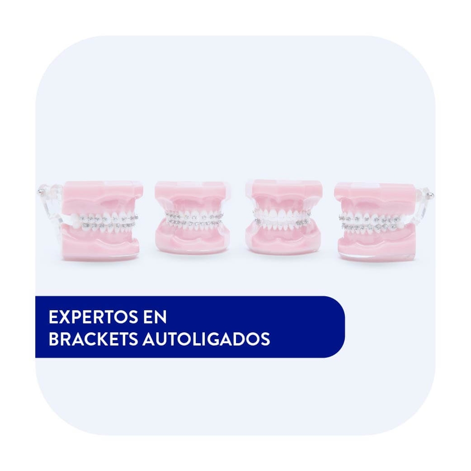 BRACKETS AUTOLIGADOS